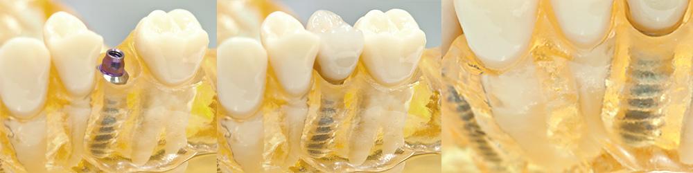 Zahnersatz Implantat